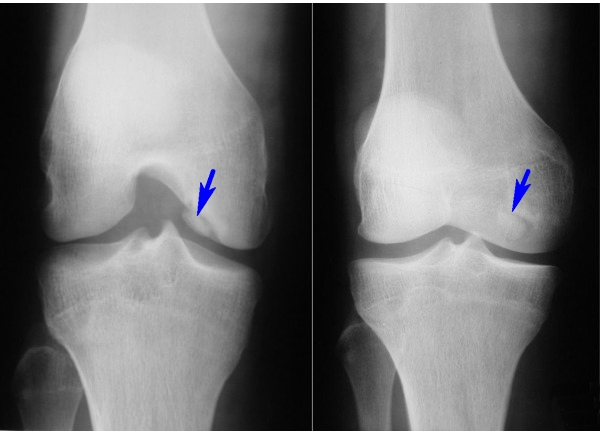 Остеопороз колена на МРТ
