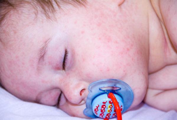 Аллергия на лактулозу
