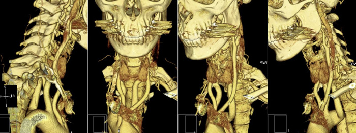 Снимок КТ при шейном остеохондрозе