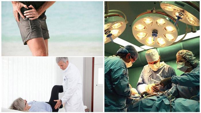 Даже без существенного нарушения подвижности суставов может быть показана операция (обычно при сильных болях)