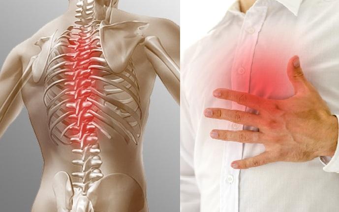 Как лечить радикулит при грудном вскармливании
