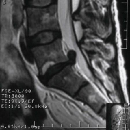 Секвестированная грыжа на МРТ
